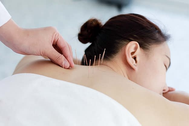 Acupuncture and Physical Therapy oregon