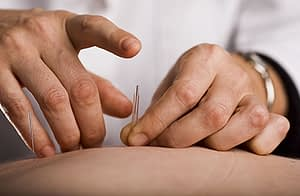 acupuncture therapy crestview recovery center